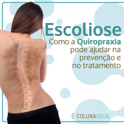 Escoliose, como a quiropraxia pode ajudar na prevenção e tratamento.